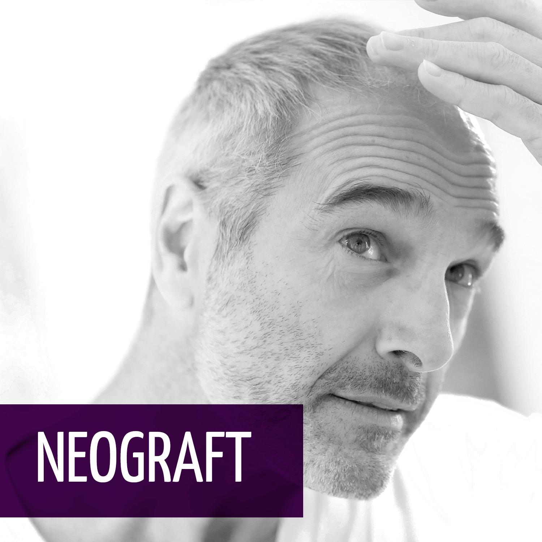 hair-neograft