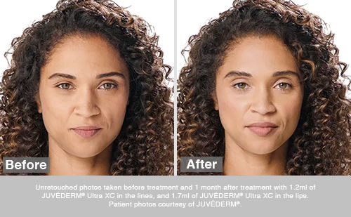 Before and after of a woman that received Juvederm Ultra XC.