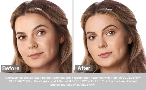 Before and After of a patient that received Voluma on her cheeks.